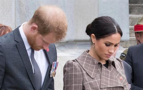 Принц Гарри облысел после свадьбы