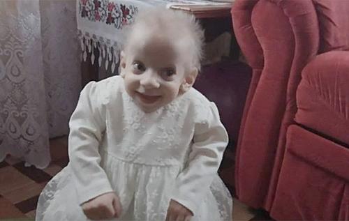 В Луцке в возрасте 70 лет умерла восьмилетняя девочка