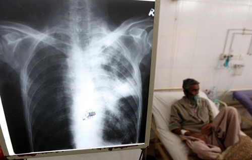 Вчені з'ясували механізм самознищення туберкульозу