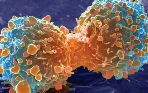Техника редактирования генов помогла уничтожить раковые клетки