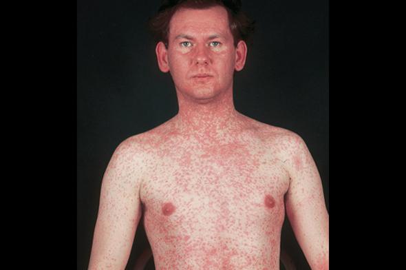 http://uainfo.org/uploads/posts/2011-06/1308301694_fcascd_measles.jpg